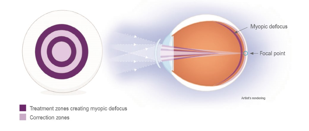 MiSight info
